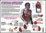"Плакат ""Артериална хипертония и органни поражения"""